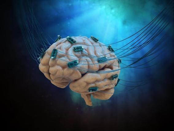 bypass neuronal 4