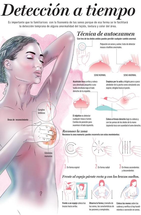 brasier para detectar el cancer de mama 1