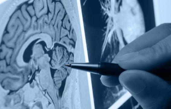 descifrar los secretos del cerebro humano 4