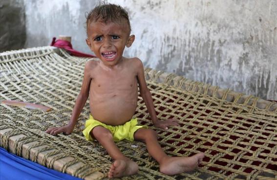 miles de ninos mueren en yemen 1