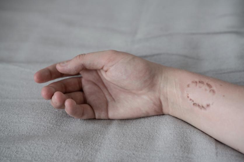 Incomodas fotografías que nos afirman que los cuerpos desnudos son bellos aún con cicatrices 0