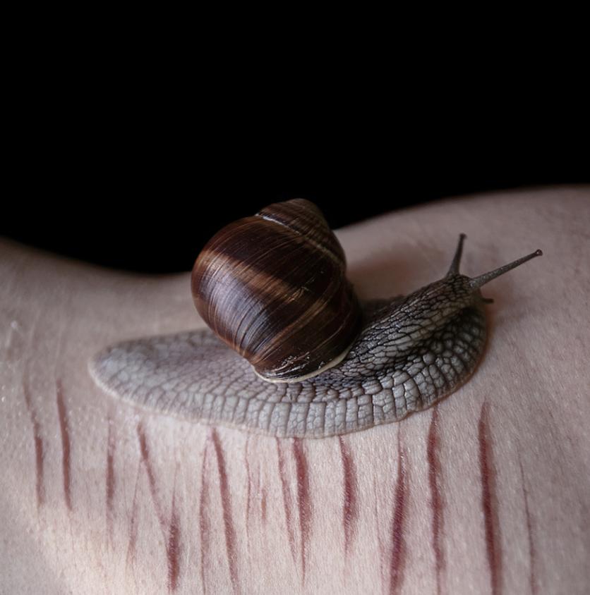 Incomodas fotografías que nos afirman que los cuerpos desnudos son bellos aún con cicatrices 1