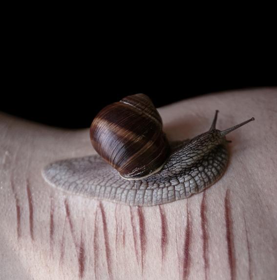 fotografias de desnudos con cicatrices 2