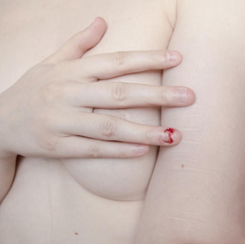 Incomodas fotografías que nos afirman que los cuerpos desnudos son bellos aún con cicatrices 8