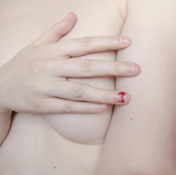 fotografias de desnudos con cicatrices 9