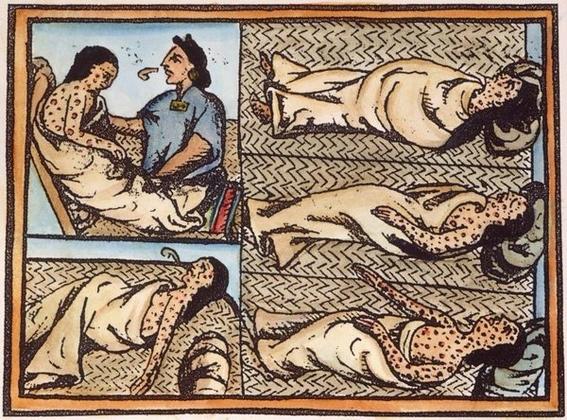 enfermedad que acabo con los aztecas 3