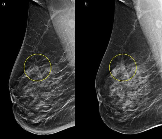 un nuevo metodo medico detecta el cancer de mama con inteligencia artificial 2