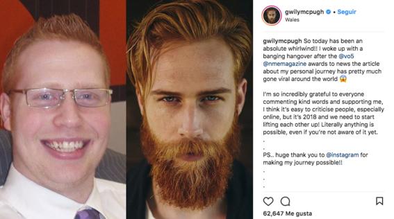 tipos de barba 2