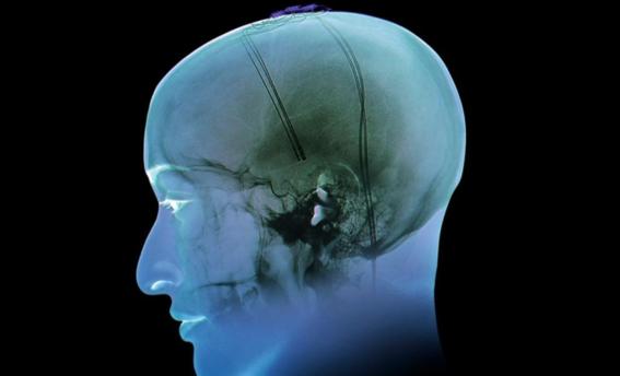 estimulacion cerebral como tratamiento para la obesidad 2