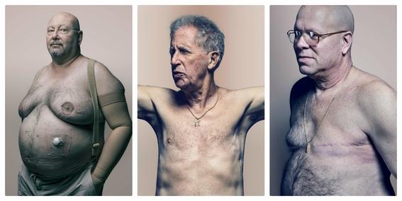 cancer de mama en hombres 3