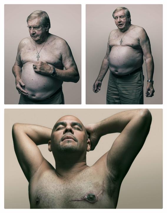 cancer de mama en hombres 4