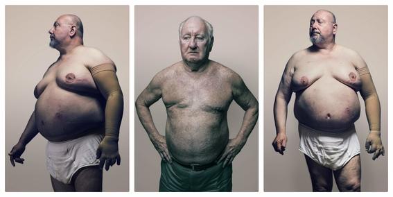 cancer de mama en hombres 5