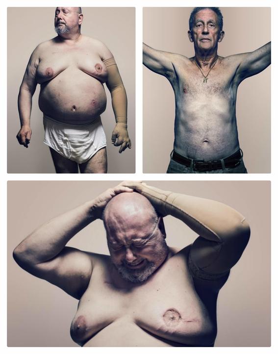 cancer de mama en hombres 2