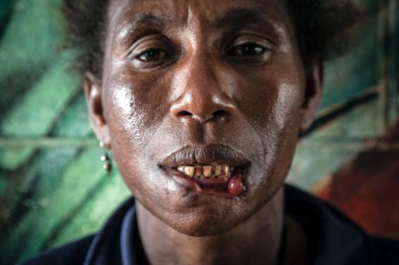 violencia de genero papua nueva guinea 7