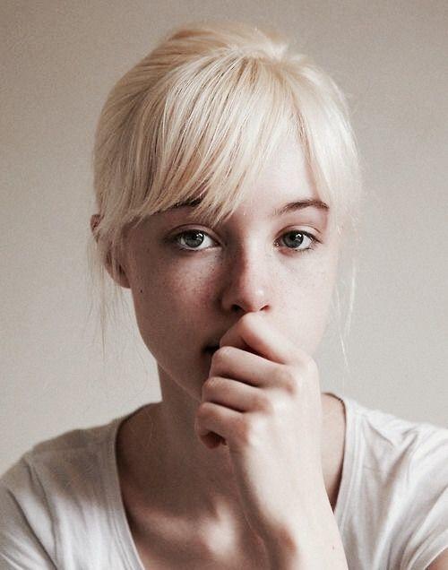 remedios para eliminar el acne 5