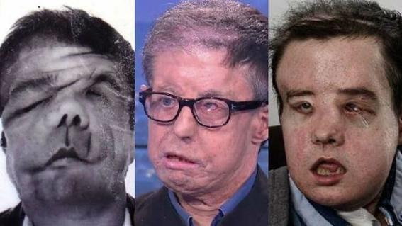 el frances que recibe trasplante de rostro 1