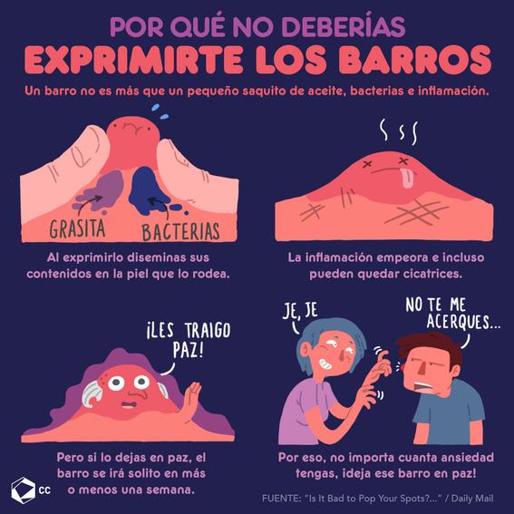 infografia de por que no debes de exprimirte los barros 1