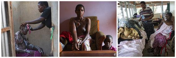 cancer de mama en uganda 13