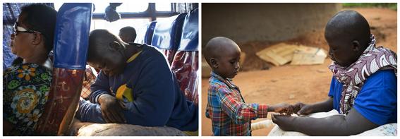 cancer de mama en uganda 10