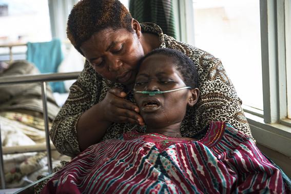 cancer de mama en uganda 11