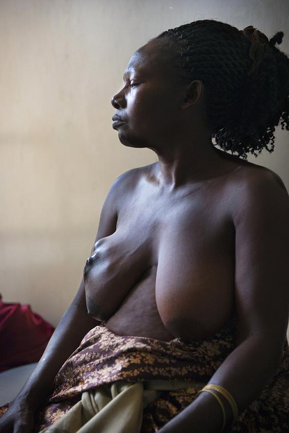 cancer de mama en uganda 14