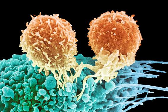 nuevo tratamiento logra vencer cancer de mama 3
