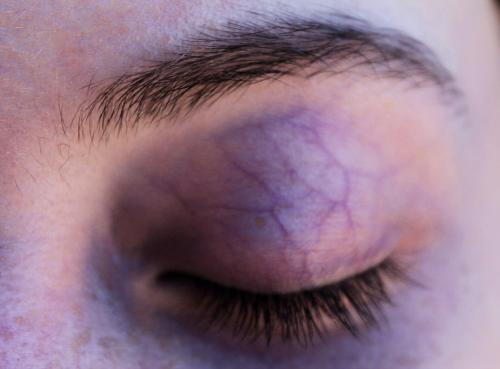 senales de que tus moretones pueden ser sintoma de una enfermedad grave 4