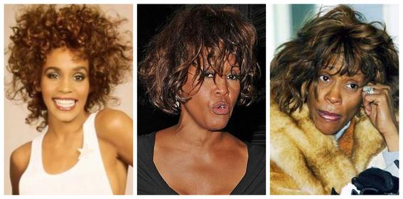 fotos del antes y despues de amy winehouse y otras famosas adictas a las drogas 4