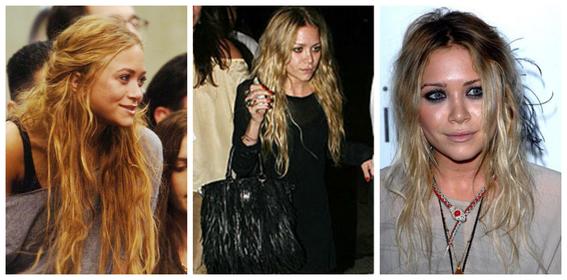 fotos del antes y despues de amy winehouse y otras famosas adictas a las drogas 6