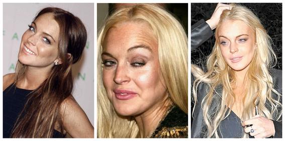 fotos del antes y despues de amy winehouse y otras famosas adictas a las drogas 7