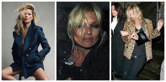 fotos del antes y despues de amy winehouse y otras famosas adictas a las drogas 9