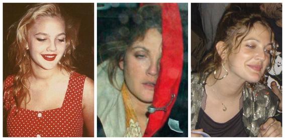 fotos del antes y despues de amy winehouse y otras famosas adictas a las drogas 10