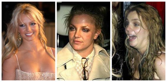 fotos del antes y despues de amy winehouse y otras famosas adictas a las drogas 11