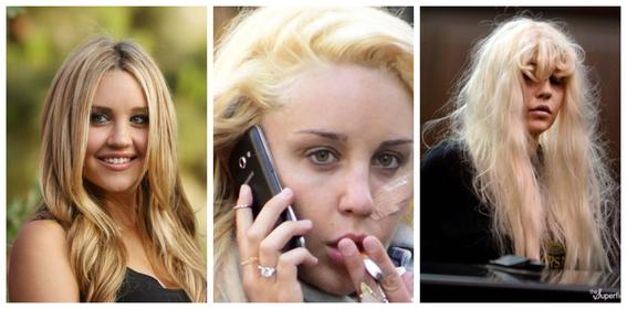 fotos del antes y despues de amy winehouse y otras famosas adictas a las drogas 13