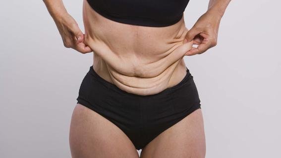 que le pasa al cuerpo cuando bajas de peso 4