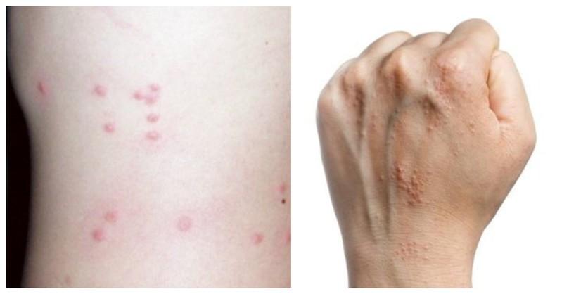Lunares nuevos y otras señales de que podrías tener cáncer de piel 5