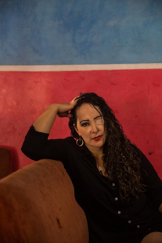 fotografias de betty laura zapata sobre mujeres colombianas atacadas con acido 1