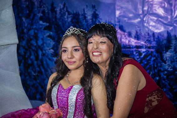 fotografias de betty laura zapata sobre mujeres colombianas atacadas con acido 4