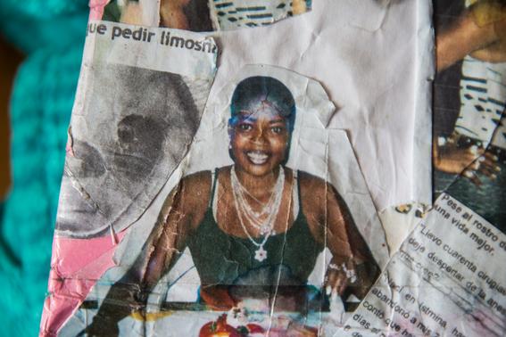 fotografias de betty laura zapata sobre mujeres colombianas atacadas con acido 6