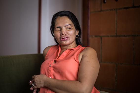 fotografias de betty laura zapata sobre mujeres colombianas atacadas con acido 8