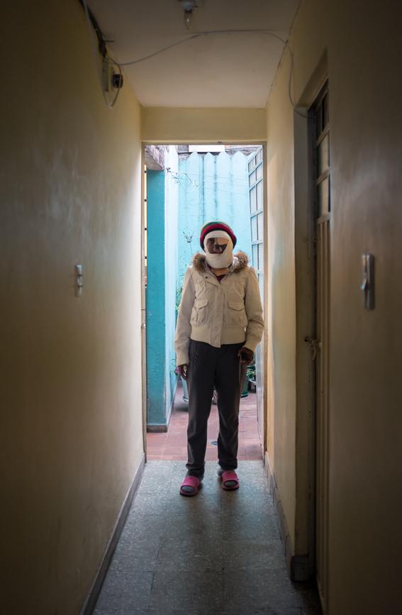 fotografias de betty laura zapata sobre mujeres colombianas atacadas con acido 9
