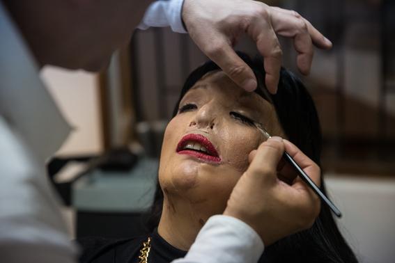 fotografias de betty laura zapata sobre mujeres colombianas atacadas con acido 13
