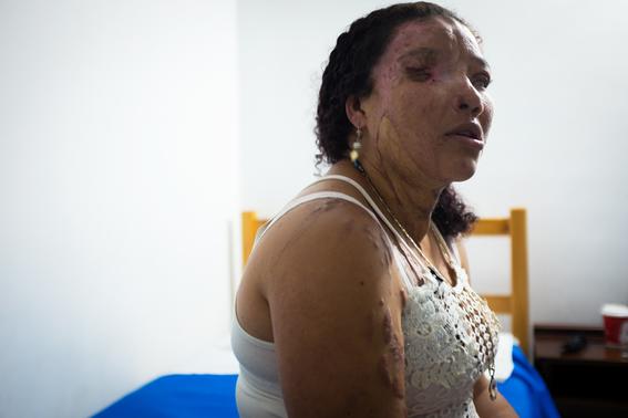 fotografias de betty laura zapata sobre mujeres colombianas atacadas con acido 14