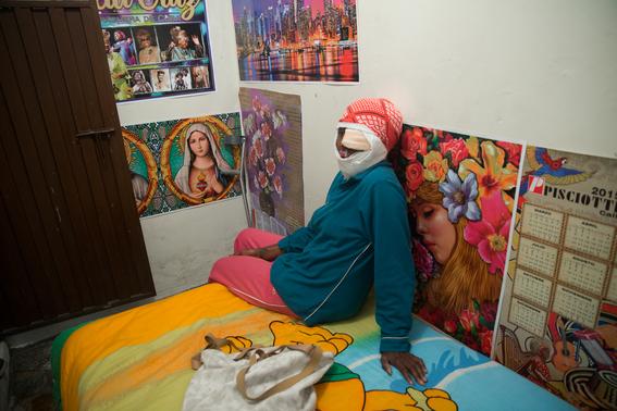 fotografias de betty laura zapata sobre mujeres colombianas atacadas con acido 15