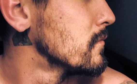 razones por las que no te crece la barba 5