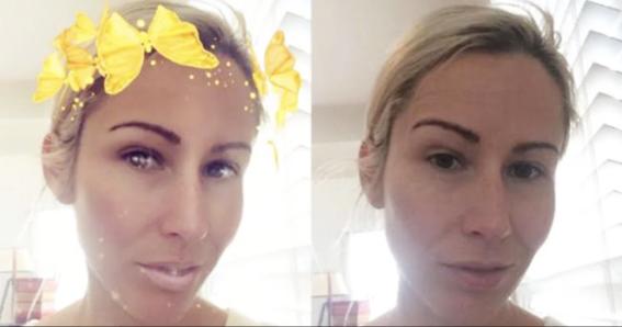 operarse para lucir como filtros de snapchat 2