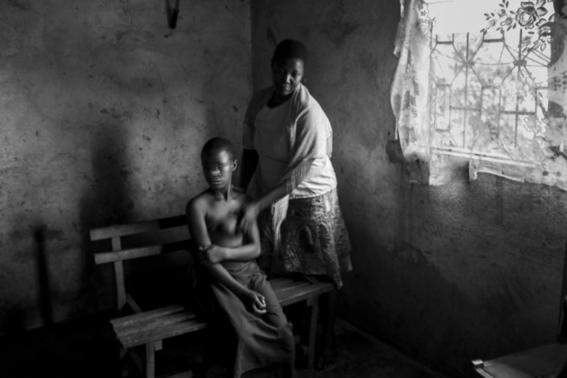 planchado de senos en camerun 2