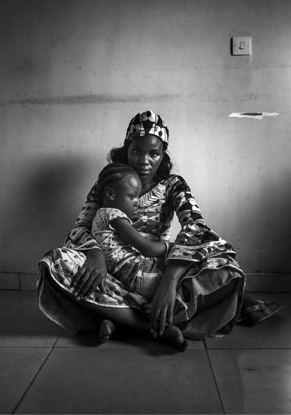 planchado de senos en camerun 4