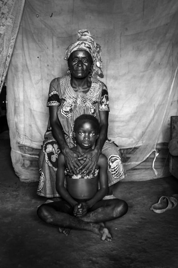 planchado de senos en camerun 5