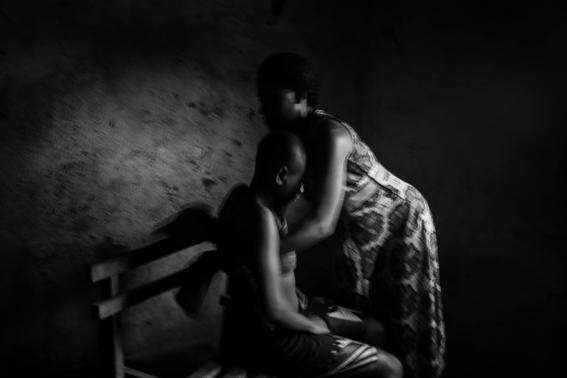 planchado de senos en camerun 3